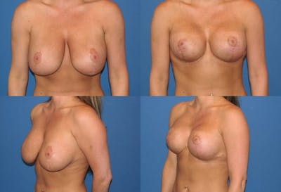 Breast Revision Surgery Gallery - Patient 2158785 - Image 1