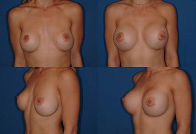 Breast Revision Surgery Gallery - Patient 2158786 - Image 1
