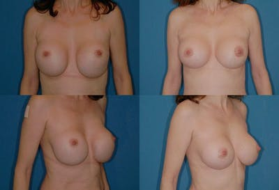 Breast Revision Surgery Gallery - Patient 2158788 - Image 1