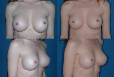 Breast Revision Surgery Gallery - Patient 2158790 - Image 1