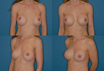 Mal-position- Inferior and/or Lateral Gallery - Patient 2388928 - Image 1