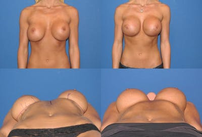Mal-position- Inferior and/or Lateral Gallery - Patient 2388933 - Image 1