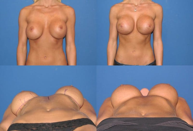 Breast Revision Surgery Gallery - Patient 2158797 - Image 1