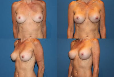 Breast Revision Surgery Gallery - Patient 2158799 - Image 1
