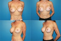 Breast Revision Surgery Gallery - Patient 2158800 - Image 1