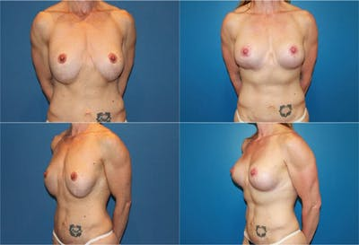Breast Revision Surgery Gallery - Patient 2158802 - Image 1
