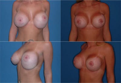 Breast Revision Surgery Gallery - Patient 2158803 - Image 1