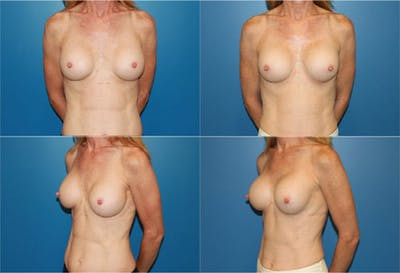 Breast Revision Surgery Gallery - Patient 2158804 - Image 1