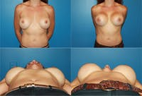 Mal-position- Inferior and/or Lateral Gallery - Patient 2388940 - Image 1