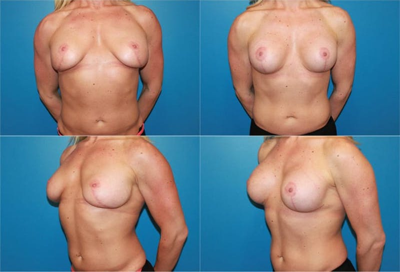 Breast Revision Surgery Gallery - Patient 2158807 - Image 1
