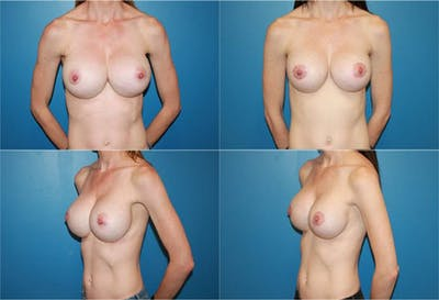 Breast Revision Surgery Gallery - Patient 2158808 - Image 1