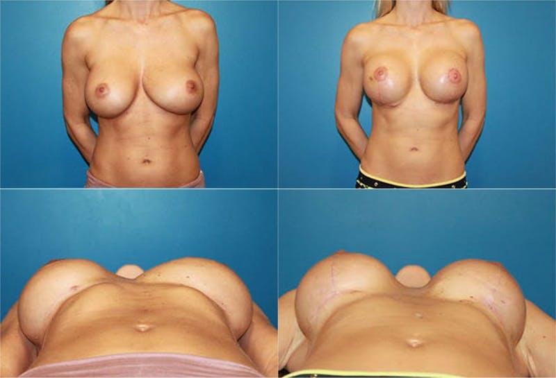Mal-position Medial/Symmastia Gallery - Patient 2389065 - Image 1