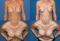 Breast Revision Surgery Gallery - Patient 2158811 - Image 1