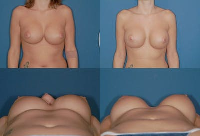 Mal-position Medial/Symmastia Gallery - Patient 2389067 - Image 1