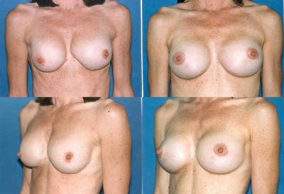 Breast Revision Surgery Gallery - Patient 2158816 - Image 1