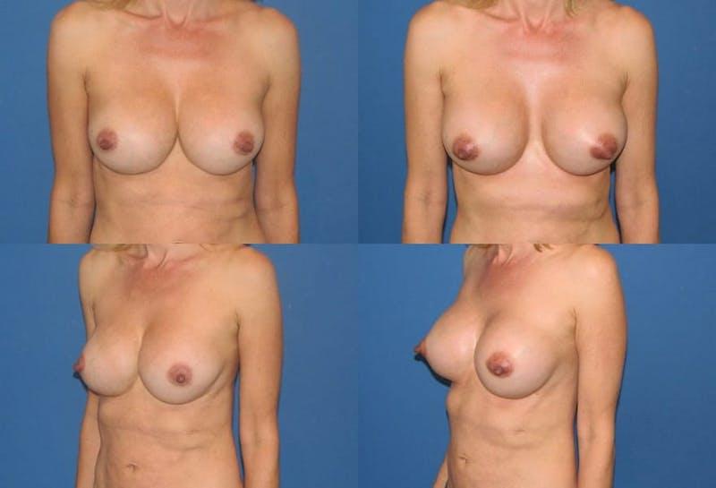Mal-position Medial/Symmastia Gallery - Patient 2389069 - Image 1