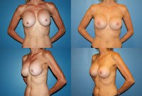 Breast Revision Surgery Gallery - Patient 2158818 - Image 1
