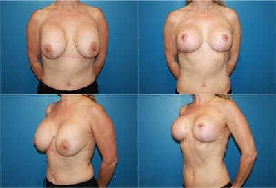 Breast Revision Surgery Gallery - Patient 2158821 - Image 1