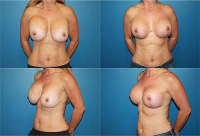 Breast Revision Surgery Gallery - Patient 2158825 - Image 1