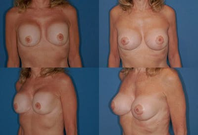 Breast Revision Surgery Gallery - Patient 2158829 - Image 1