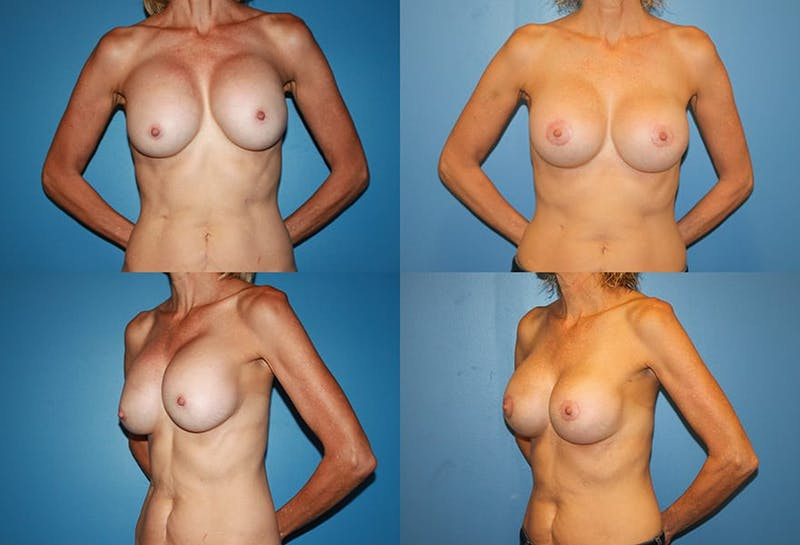 Capsular Contracture Gallery - Patient 2393544 - Image 1