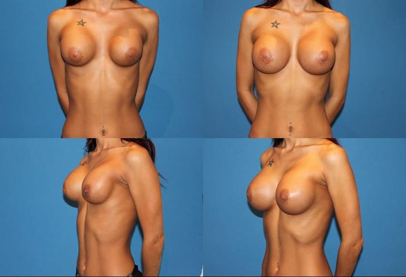 Breast Revision Surgery Gallery - Patient 2158833 - Image 1