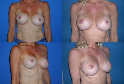 Capsular Contracture Gallery - Patient 2393546 - Image 1