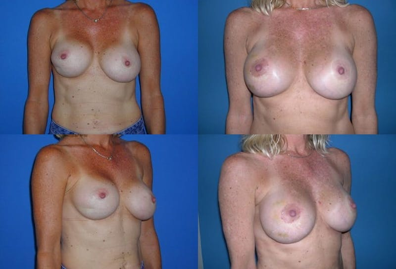 Breast Revision Surgery Gallery - Patient 2158834 - Image 1