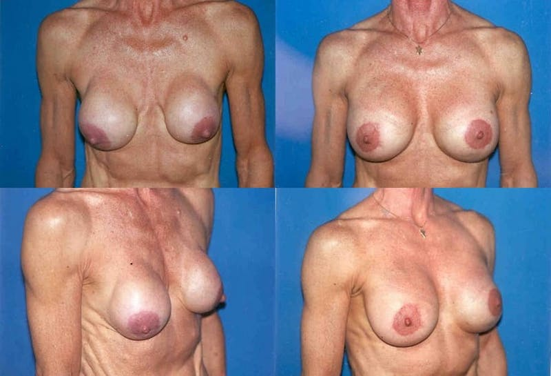 Capsular Contracture Gallery - Patient 2393547 - Image 1