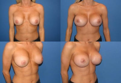 Capsular Contracture Gallery - Patient 2393548 - Image 1