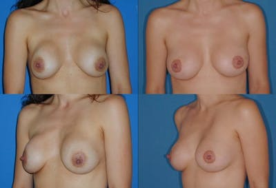 Breast Revision Surgery Gallery - Patient 2158837 - Image 1