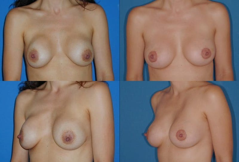 Capsular Contracture Gallery - Patient 2393549 - Image 1