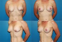 Breast Revision Surgery Gallery - Patient 2158839 - Image 1
