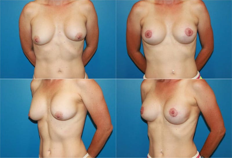 Capsular Contracture Gallery - Patient 2393550 - Image 1