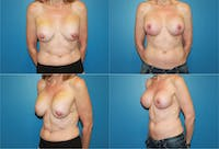 Breast Revision Surgery Gallery - Patient 2158842 - Image 1