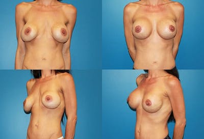 Capsular Contracture Gallery - Patient 2393552 - Image 1