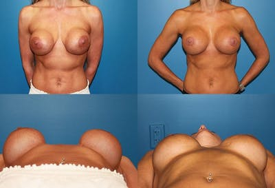 Capsular Contracture Gallery - Patient 2393553 - Image 1