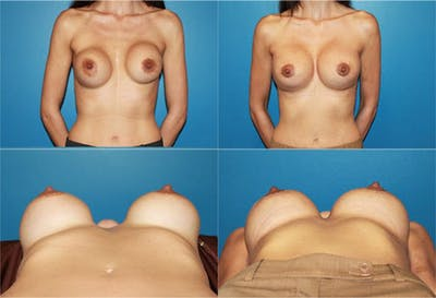 Capsular Contracture Gallery - Patient 2393554 - Image 1
