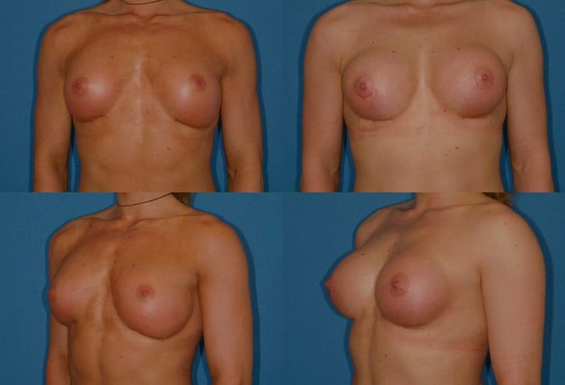 Capsular Contracture Gallery - Patient 2393555 - Image 1