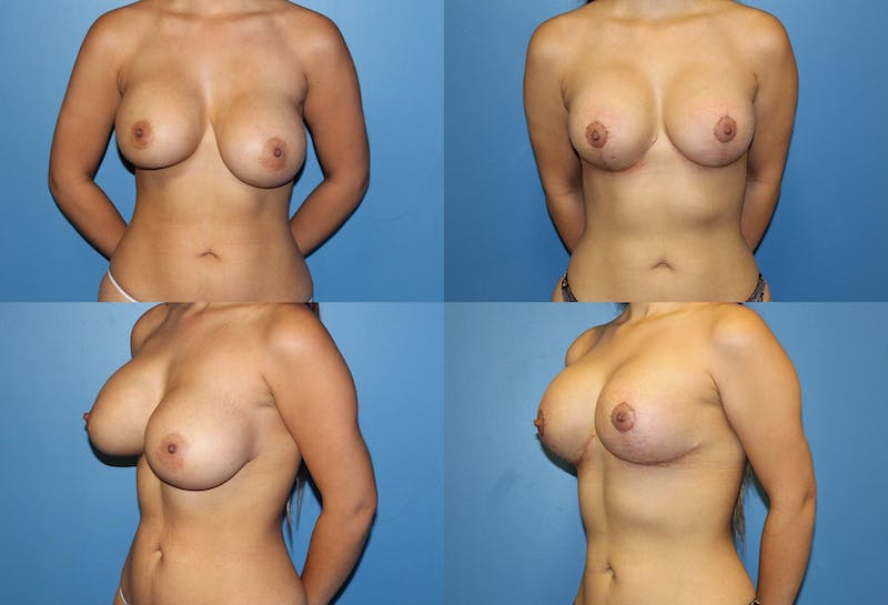 Breast Revision Surgery Gallery - Patient 2158849 - Image 1