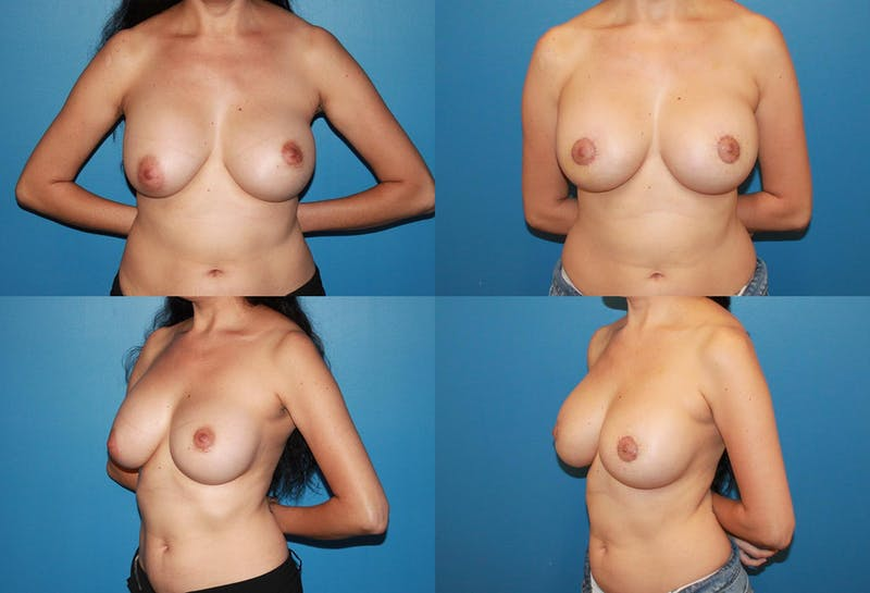 Breast Revision Surgery Gallery - Patient 2158850 - Image 1