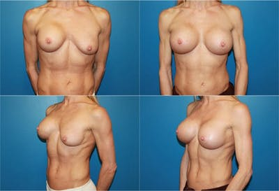 Breast Revision Surgery Gallery - Patient 2158852 - Image 1