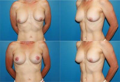 Breast Revision Surgery Gallery - Patient 2158853 - Image 1