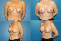 Breast Revision Surgery Gallery - Patient 2158855 - Image 1