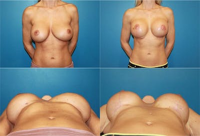 Breast Revision Surgery Gallery - Patient 2158856 - Image 1