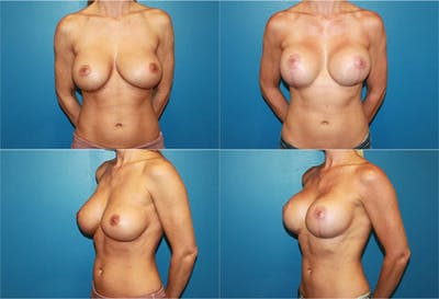 Breast Revision Surgery Gallery - Patient 2158857 - Image 1