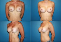 Breast Revision Surgery Gallery - Patient 2158858 - Image 1