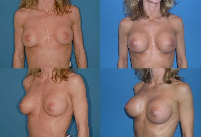 Breast Revision Surgery Gallery - Patient 2158859 - Image 1