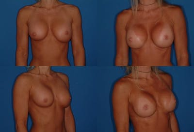 Breast Revision Surgery Gallery - Patient 2158860 - Image 1