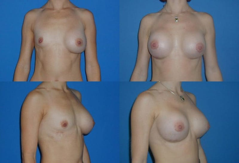 Breast Revision Surgery Gallery - Patient 2158861 - Image 1